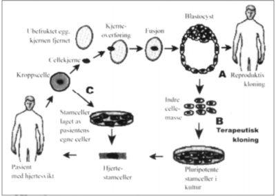 Stamceller og terapeutisk kloning
